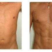 قبل و بعد لیپوماتیک