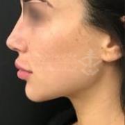 تزریق چربی پوست