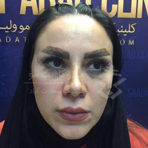 اصلاح صورت با تزریق چربی