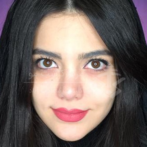 تزریق چربی به بدن و صورت