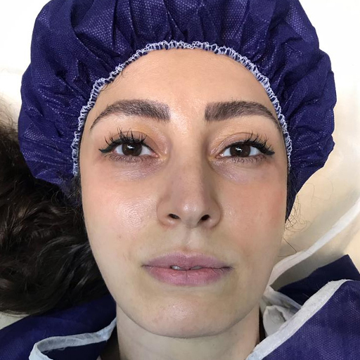 تزریق چربی صورت