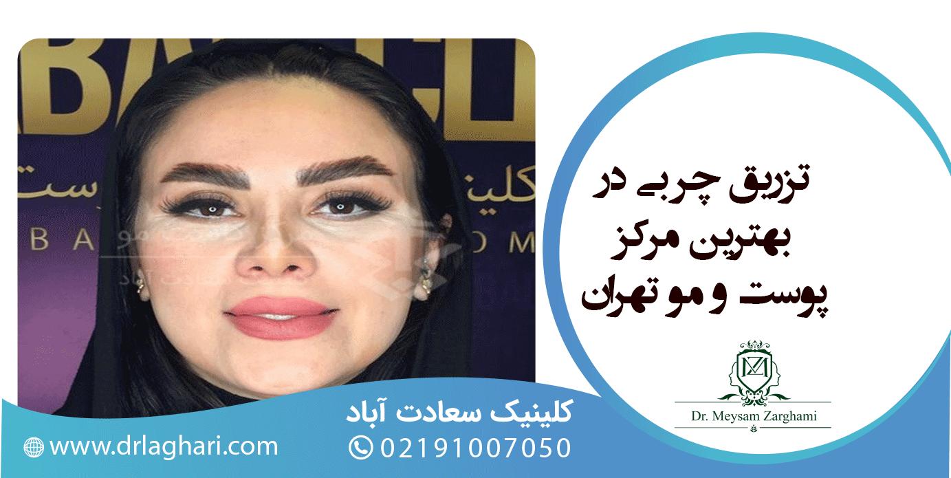 تزریقچربی در بهترین مرکز پوست و مو تهران